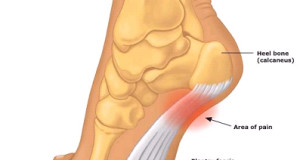 Pain in the…FOOT! Plantar Fasciitis