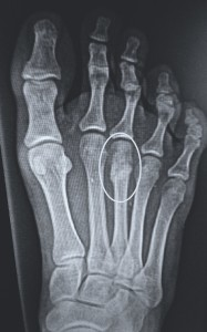 Stress Fracture XRay