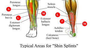 shin_splints.09