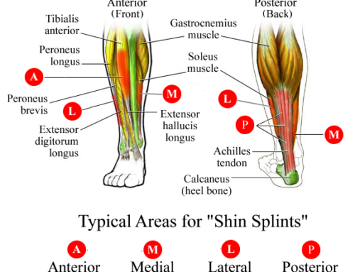 Every Runner's Nemesis – Shin Splints