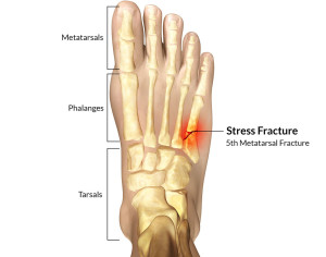 Stress-Fracture-Of-The-Foot