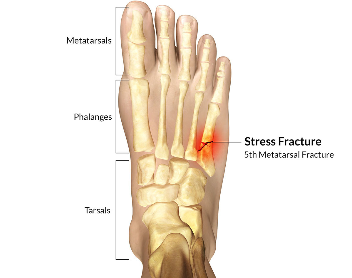 Stress Fractures – Less Fun Than You Think! – RunLikeCrazy