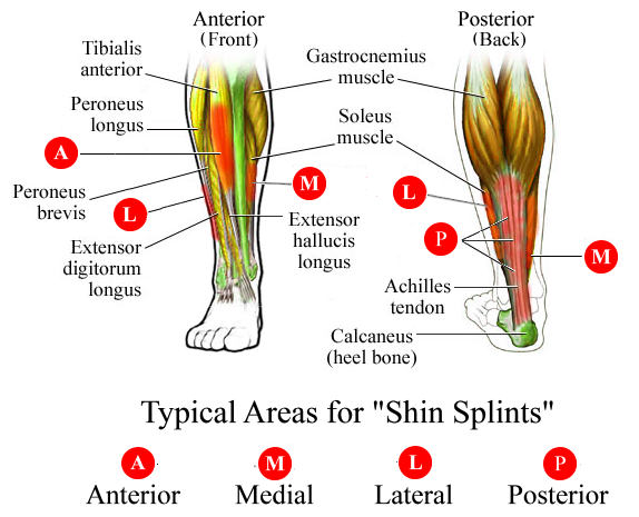 Every Runner's Nemesis – Shin Splints